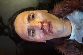 Officials Silent after Brutal Attack on Trans Woman in Tirana