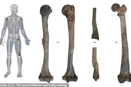Albanian Neolithic Remains Evidence Oldest Known Case of Osteopetrosis