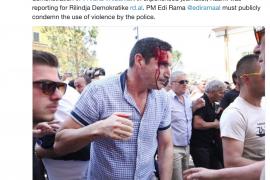 Protesta e opozitës, 'Reporterët pa Kufij' dënon dhunën policore ndaj gazetarit