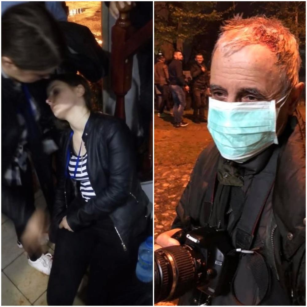 Organizatat për monitorimin e lirisë së medias kritikojnë sjelljen e policisë ndaj gazetarëve